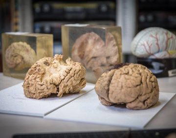 Science in Progress: Dissecting the Human Brain
